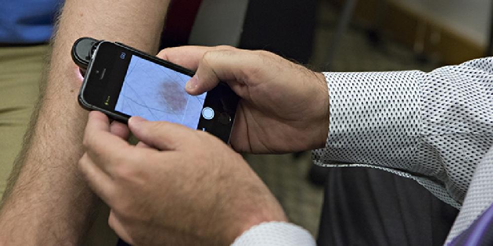 Desarrollan una aplicación capaz de detectar cáncer de piel con una foto